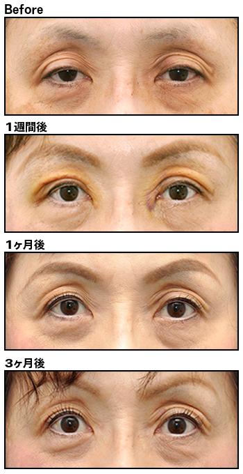 眼瞼下垂 アンチエイジング(若返り) 加藤クリニック麻布