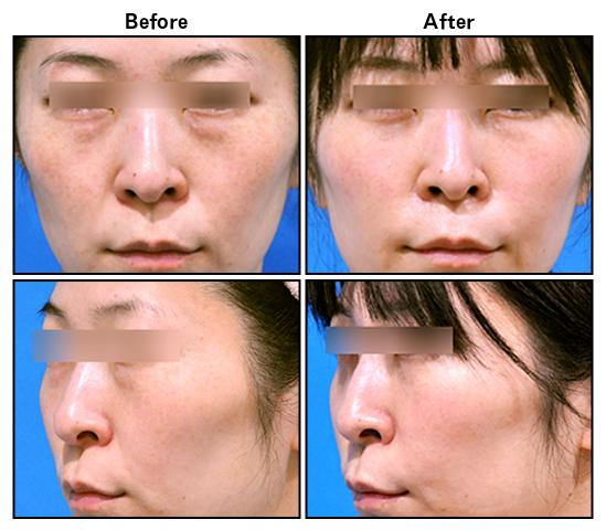 名医 取り 目の下 たるみ の 湘南美容外科で目の下の切らないたるみ取りを受けた結果【名医・ヤブ医者の一覧】症例写真 失敗画像