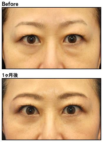 たるみ 取り ない の 切ら 目の下 目の下のたるみ取り手術はどれを選ぶ?状態と効果・費用で比較